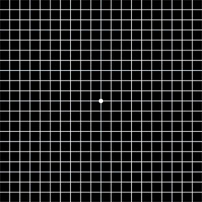 It is a picture of Accomplished Printable Amsler Grid